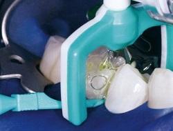 Метод Icon инфильтрации зубов