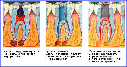 коронка на зуб запах изо рта