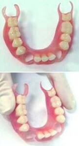 Нейлоновые съемные зубные протезы